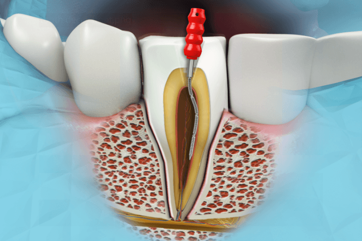 root canal treatment also known as endodontic treatment is a dental procedure in which the diseased pulp tissue is removed and the inside of the tooth is
