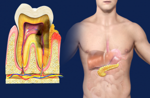 periodontal_disease_and_diabetes