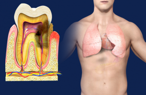 periodontal_disease_and_respiratory_disease