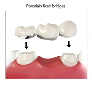 porcelain_fixed_bridges
